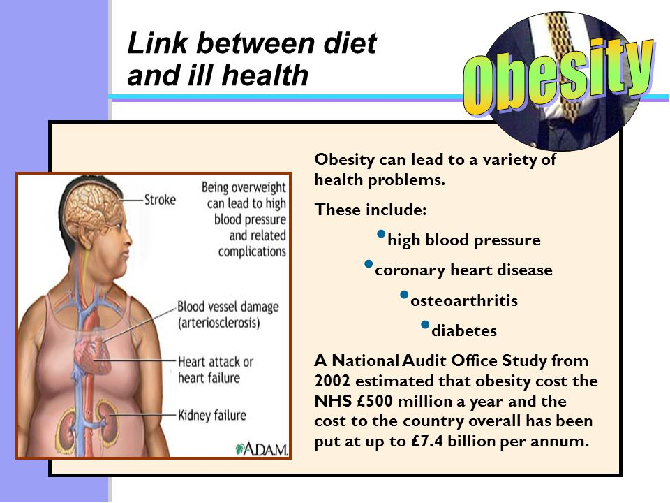 Link between diet and ill health Obesity can lead to a variety of health problems.