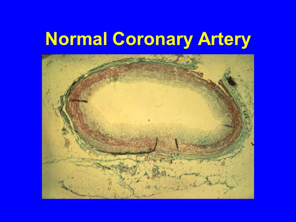 Normal Coronary Artery