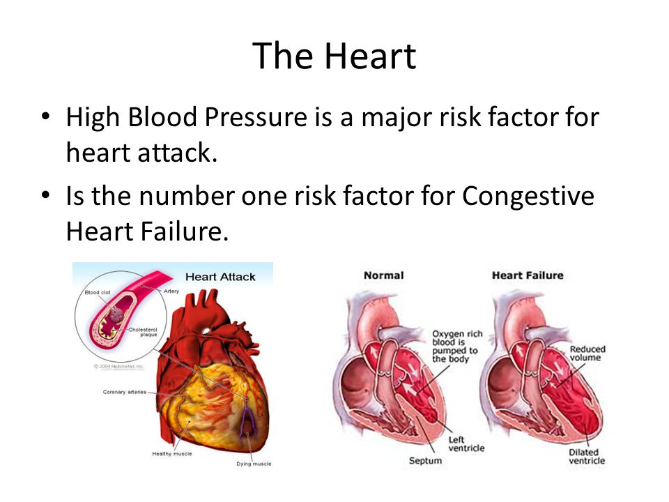 The Heart High Blood Pressure is a major risk factor for heart attack. Is the number one risk factor for Congestive Heart Failure.