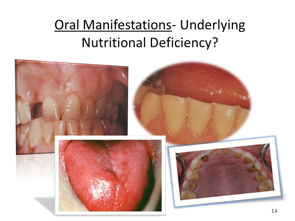 14 Oral Manifestations- Underlying Nutritional Deficiency?
