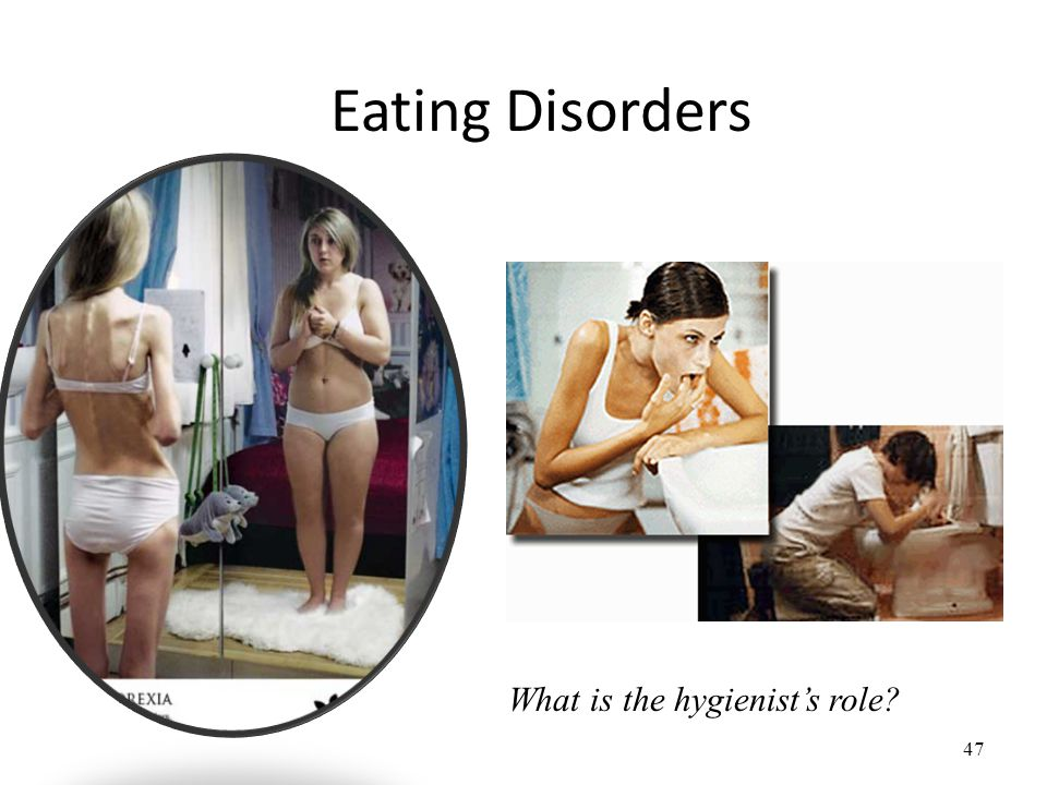 47 Eating Disorders What is the hygienists role?