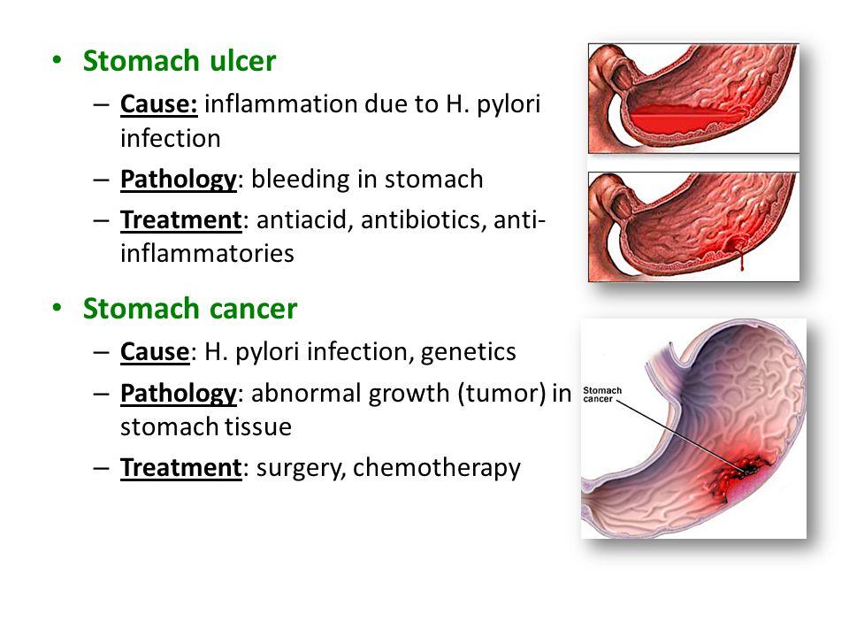 Stomach ulcer – Cause: inflammation due to H. pylori infection – Pathology: bleeding in stomach – Treatment: antiacid, antibiotics, anti- inflammatori