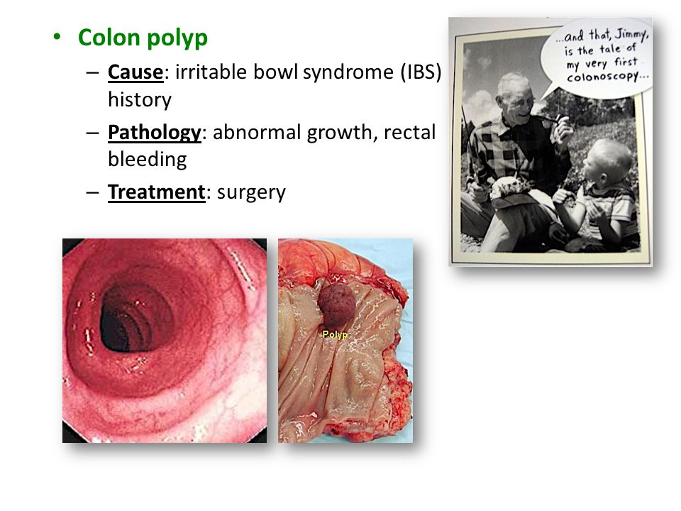 Colon polyp – Cause: irritable bowl syndrome (IBS) history – Pathology: abnormal growth, rectal bleeding – Treatment: surgery