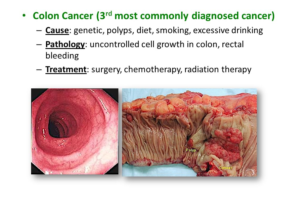 Colon Cancer (3 rd most commonly diagnosed cancer) – Cause: genetic, polyps, diet, smoking, excessive drinking – Pathology: uncontrolled cell growth i