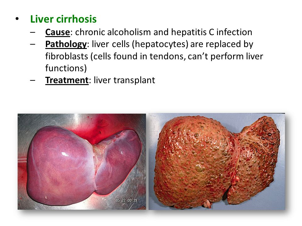 Liver cirrhosis –Cause: chronic alcoholism and hepatitis C infection –Pathology: liver cells (hepatocytes) are replaced by fibroblasts (cells found in