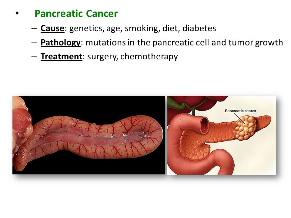 Pancreatic Cancer – Cause: genetics, age, smoking, diet, diabetes – Pathology: mutations in the pancreatic cell and tumor growth – Treatment: surgery,