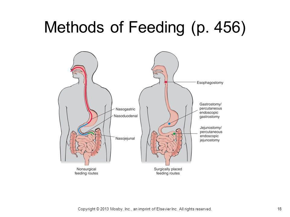 Methods of Feeding (p. 456) 18 Copyright © 2013 Mosby, Inc., an imprint of Elsevier Inc. All rights reserved.