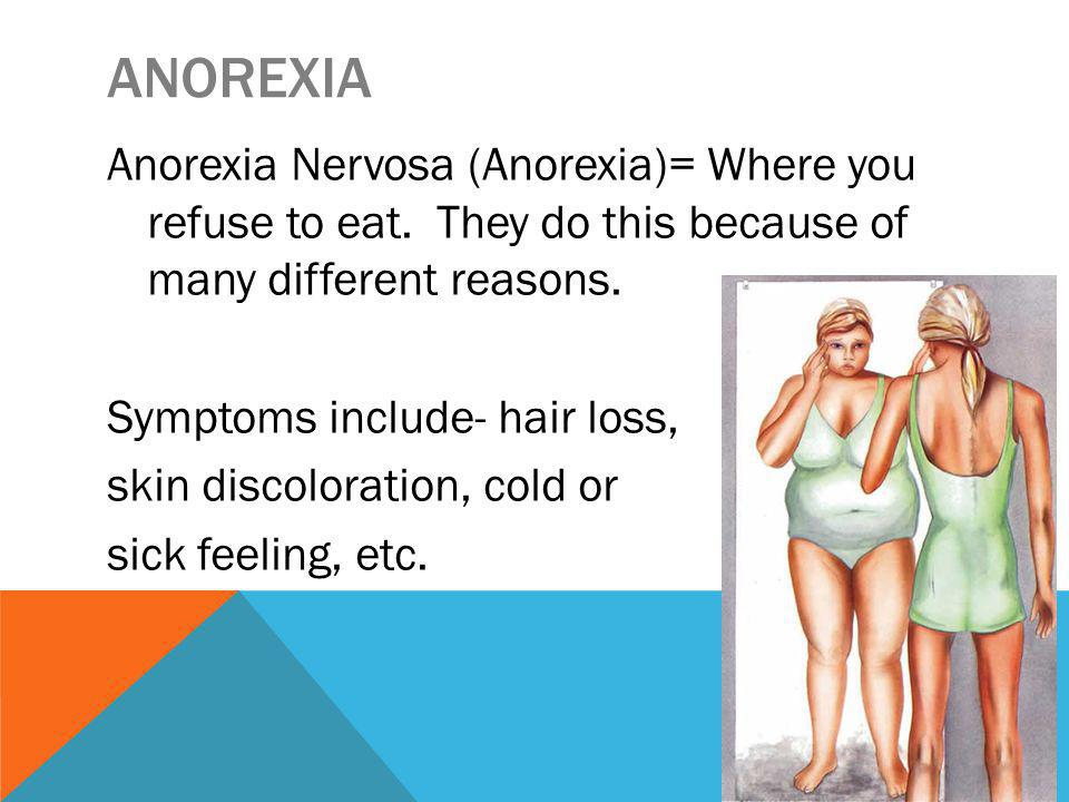 ANOREXIA Anorexia Nervosa (Anorexia)= Where you refuse to eat.