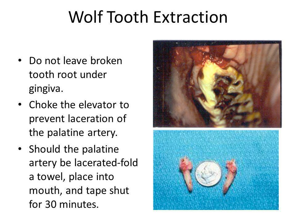 Wolf Tooth Extraction Do not leave broken tooth root under gingiva. Choke the elevator to prevent laceration of the palatine artery. Should the palati