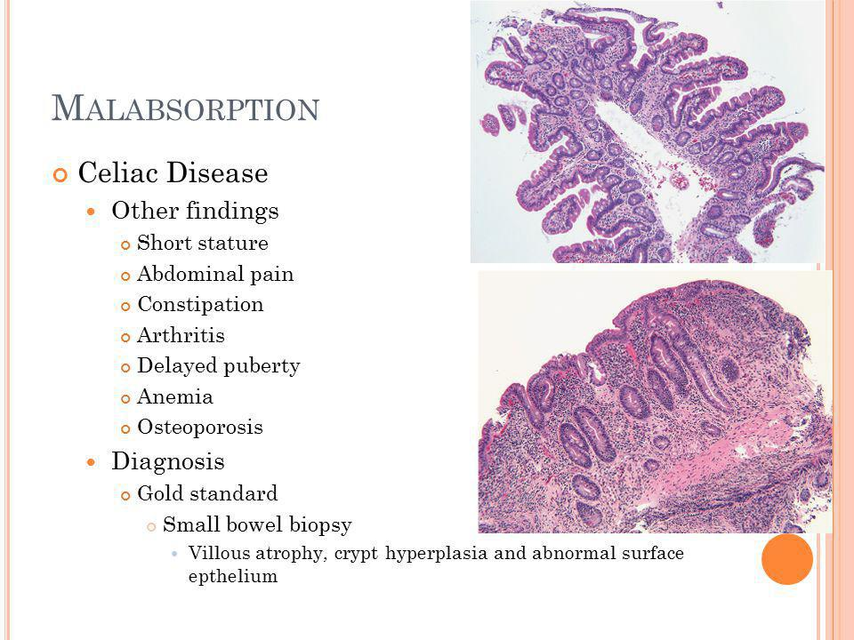 M ALABSORPTION Celiac Disease Testing Endoscopy Flattening of duodenal villi scalloping Serologic tests Antigliadin or antiendomysial antibodies Can be used to monitor adherence Treatment Complete removal of gluten Wheat Rye Barley Oats