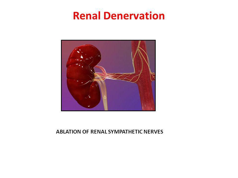 Renal Denervation ABLATION OF RENAL SYMPATHETIC NERVES