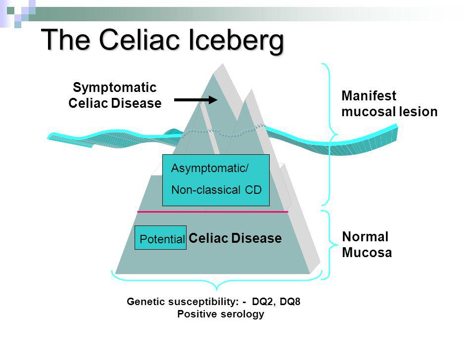 The Celiac Iceberg Symptomatic Celiac Disease Silent Celiac Disease Latent Celiac Disease Genetic susceptibility: - DQ2, DQ8 Positive serology Manifest mucosal lesion Normal Mucosa Potential Asymptomatic/ Non-classical CD