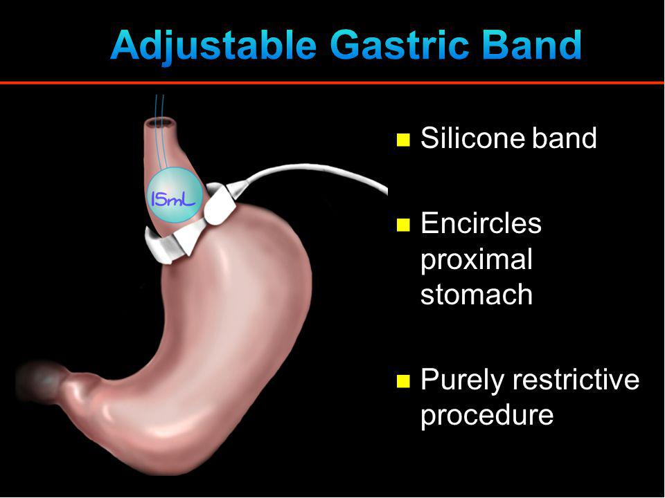 Silicone band Encircles proximal stomach Purely restrictive procedure
