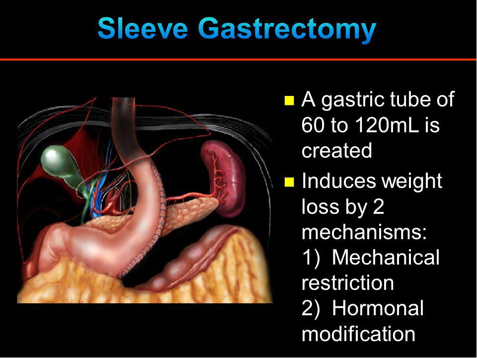 A gastric tube of 60 to 120mL is created Induces weight loss by 2 mechanisms: 1) Mechanical restriction 2) Hormonal modification