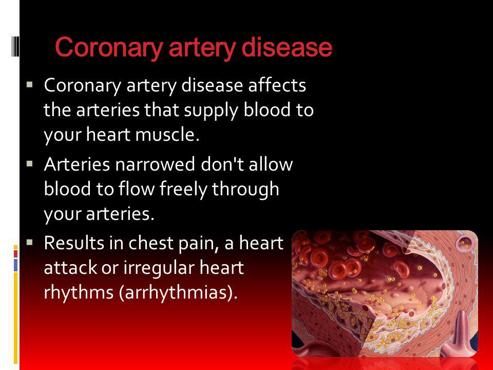 Coronary artery disease Coronary artery disease affects the arteries that supply blood to your heart muscle. Arteries narrowed don't allow blood to fl
