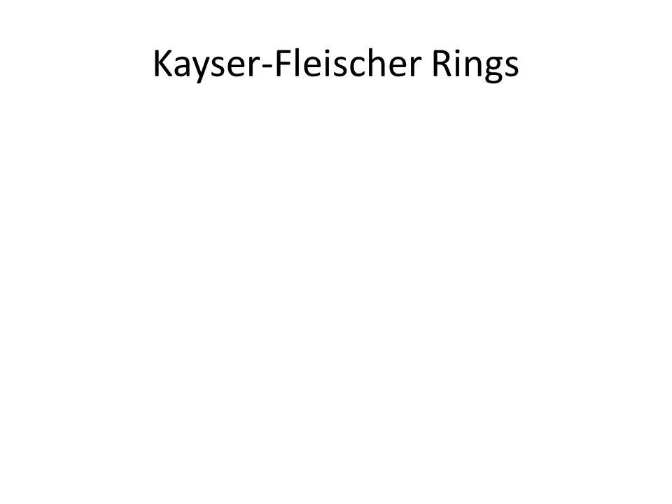 Kayser-Fleischer Rings