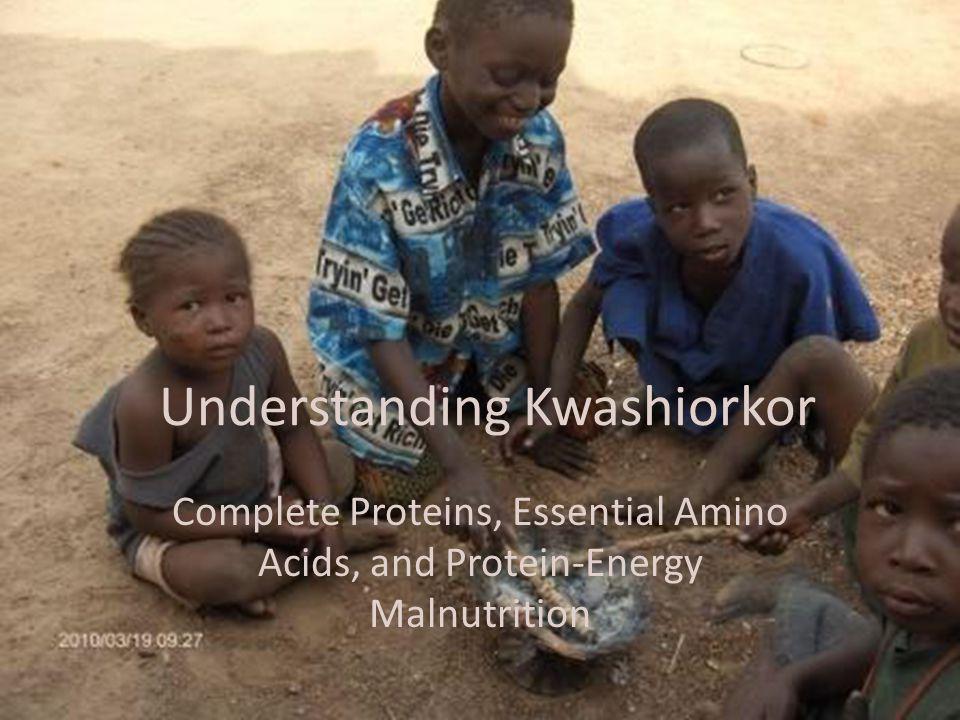 Understanding Kwashiorkor Complete Proteins, Essential Amino Acids, and Protein-Energy Malnutrition