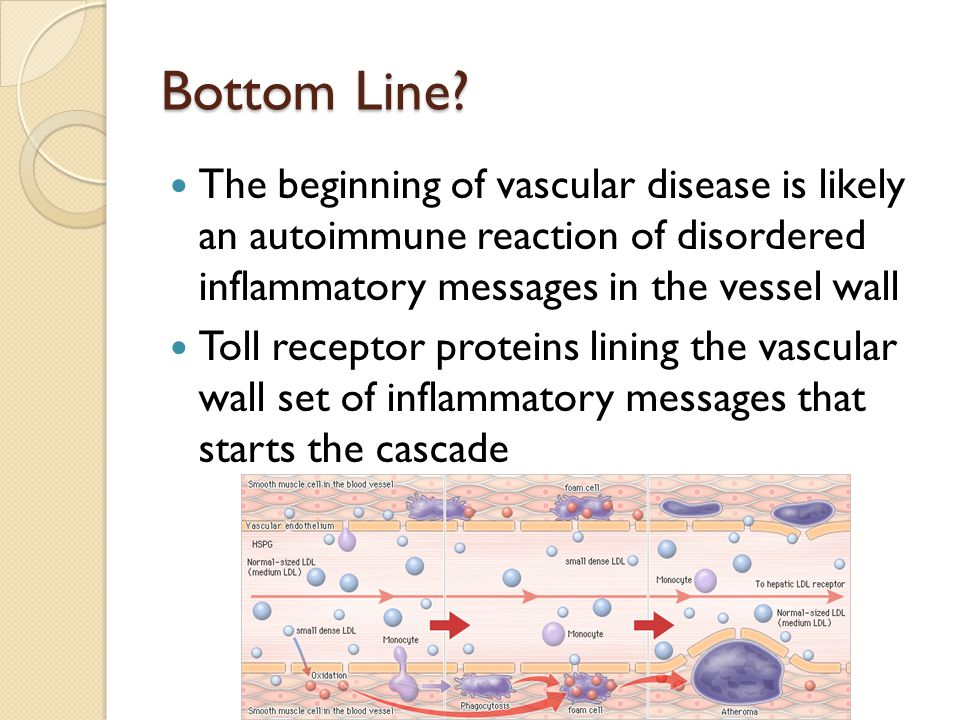 Bottom Line? The beginning of vascular disease is likely an autoimmune reaction of disordered inflammatory messages in the vessel wall Toll receptor p