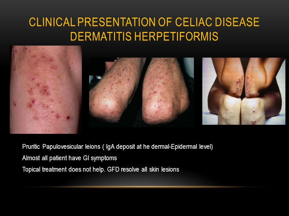 CLINICAL PRESENTATION OF CELIAC DISEASE DERMATITIS HERPETIFORMIS Pruritic Papulovesicular leions ( IgA deposit at he dermal-Epidermal level) Almost all patient have GI symptoms Topical treatment does not help.