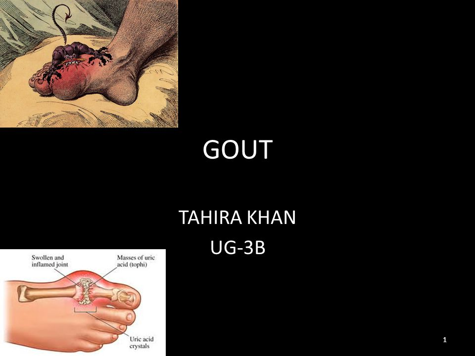 INTRODUCTION: GOUT is known as the disease of kings and rich mans disease.