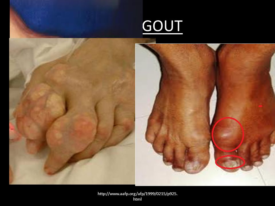CHRONIC GOUT Those with chronic arthritis symptoms include: joint damage and loss of motion in the joints.