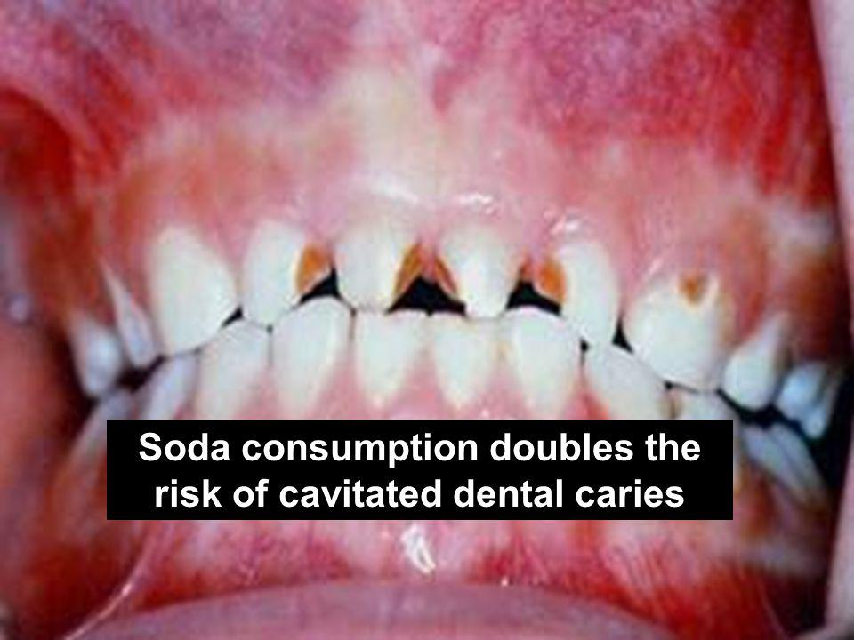 Soda consumption doubles the risk of cavitated dental caries