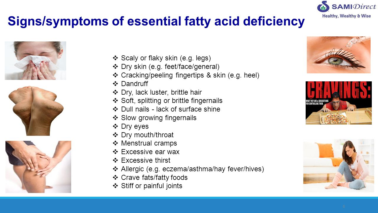 6 Signs/symptoms of essential fatty acid deficiency Scaly or flaky skin (e.g. legs) Dry skin (e.g. feet/face/general) Cracking/peeling fingertips & sk
