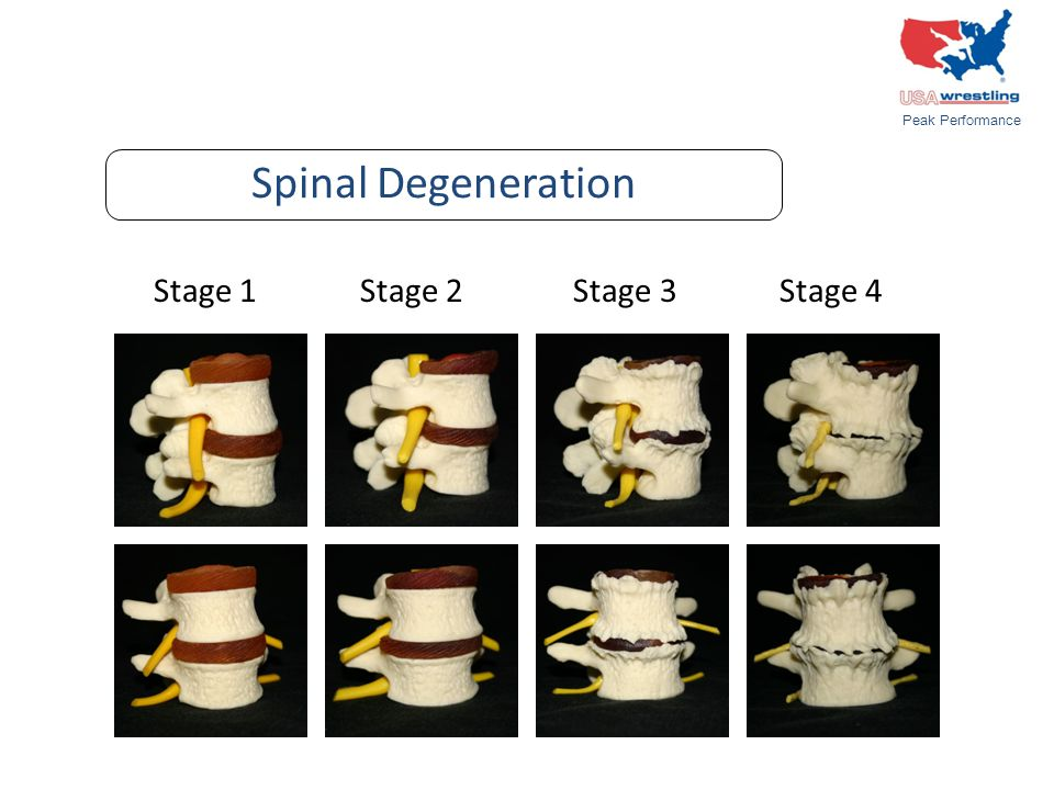 Stage 1 Stage 2 Stage 3 Stage 4 Spinal Degeneration Peak Performance