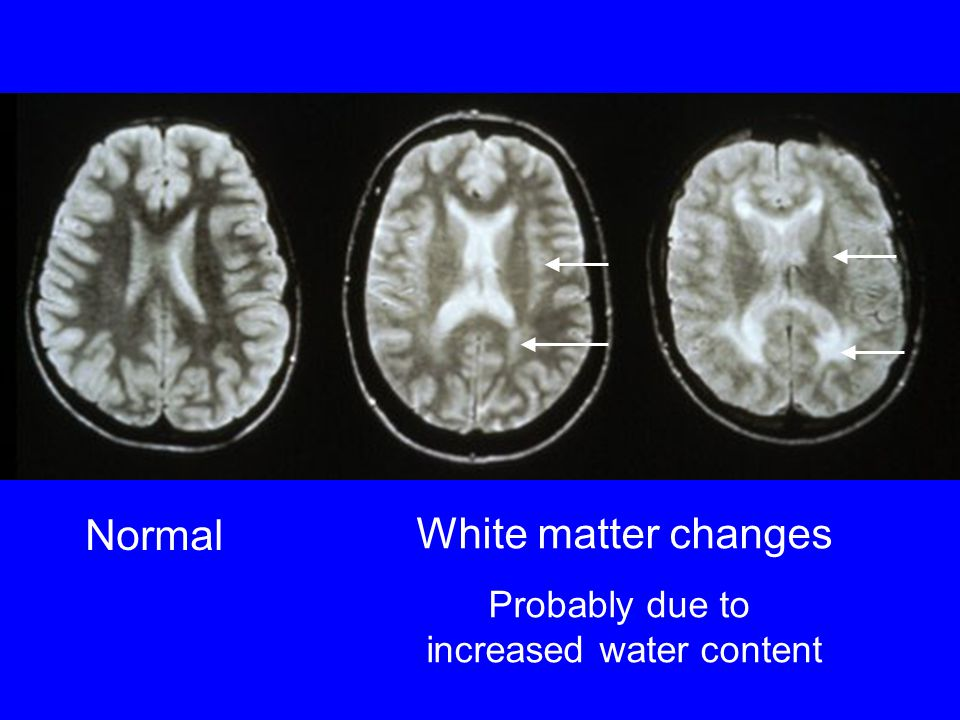 Normal White matter changes Probably due to increased water content