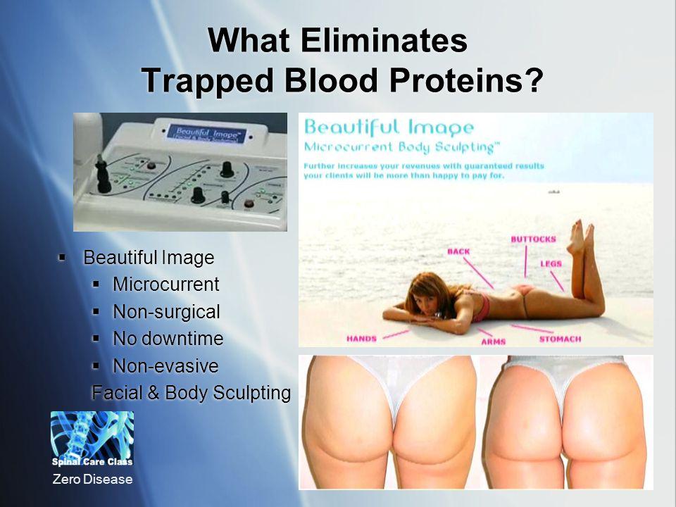Zero Disease What Eliminates Trapped Blood Proteins.