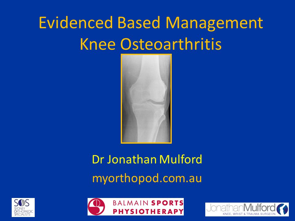 Arthroscopic Surgery There is gold level evidence that AD has no benefit for undiscriminated OA Can help acute mechanical pain due to meniscal tear, chondral flap or loose body.