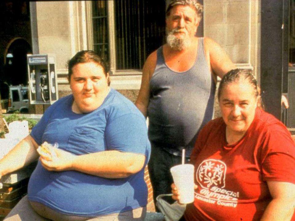 Case 2: Obesity