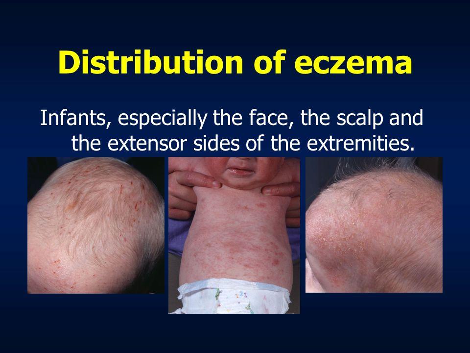 Lick eczema