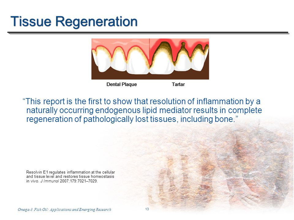 Temp-A.ppt 6/8/2014 13 13 Omega-3 Fish Oil: Applications and Emerging ResearchWith Stuart Tomc Tissue Regeneration This report is the first to show that resolution of inflammation by a naturally occurring endogenous lipid mediator results in complete regeneration of pathologically lost tissues, including bone.