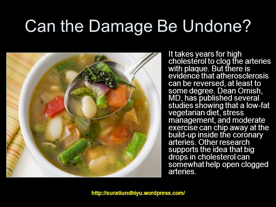 Can the Damage Be Undone.It takes years for high cholesterol to clog the arteries with plaque.