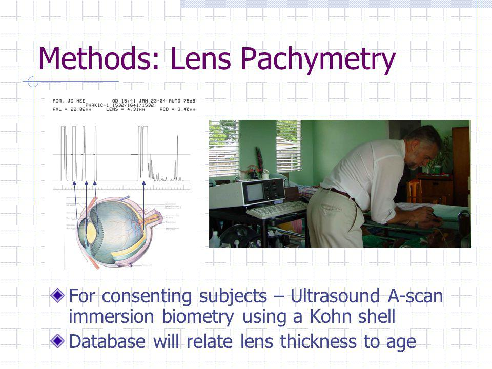 Methods: Lens Pachymetry For consenting subjects – Ultrasound A-scan immersion biometry using a Kohn shell Database will relate lens thickness to age