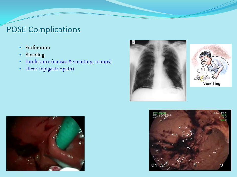 POSE Complications Perforation Perforation Bleeding Bleeding Intolerance (nausea & vomiting, cramps) Intolerance (nausea & vomiting, cramps) Ulcer (ep