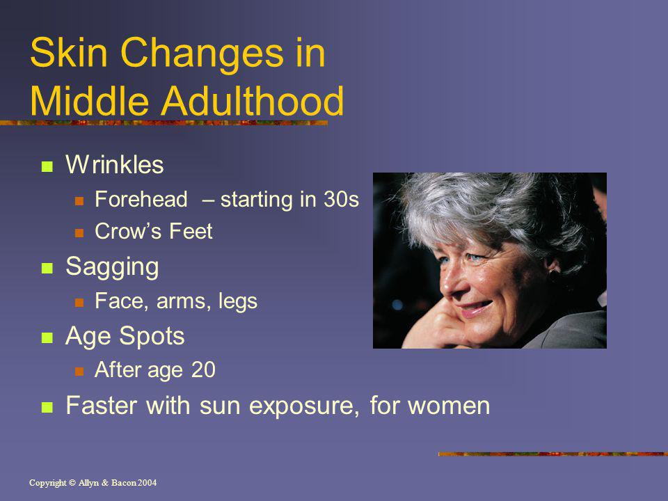 Copyright © Allyn & Bacon 2004 Skin Changes in Middle Adulthood Wrinkles Forehead – starting in 30s Crows Feet Sagging Face, arms, legs Age Spots After age 20 Faster with sun exposure, for women