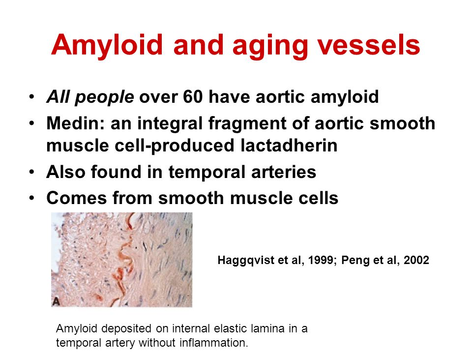 Amyloid and aging vessels All people over 60 have aortic amyloid Medin: an integral fragment of aortic smooth muscle cell-produced lactadherin Also found in temporal arteries Comes from smooth muscle cells Haggqvist et al, 1999; Peng et al, 2002 Amyloid deposited on internal elastic lamina in a temporal artery without inflammation.