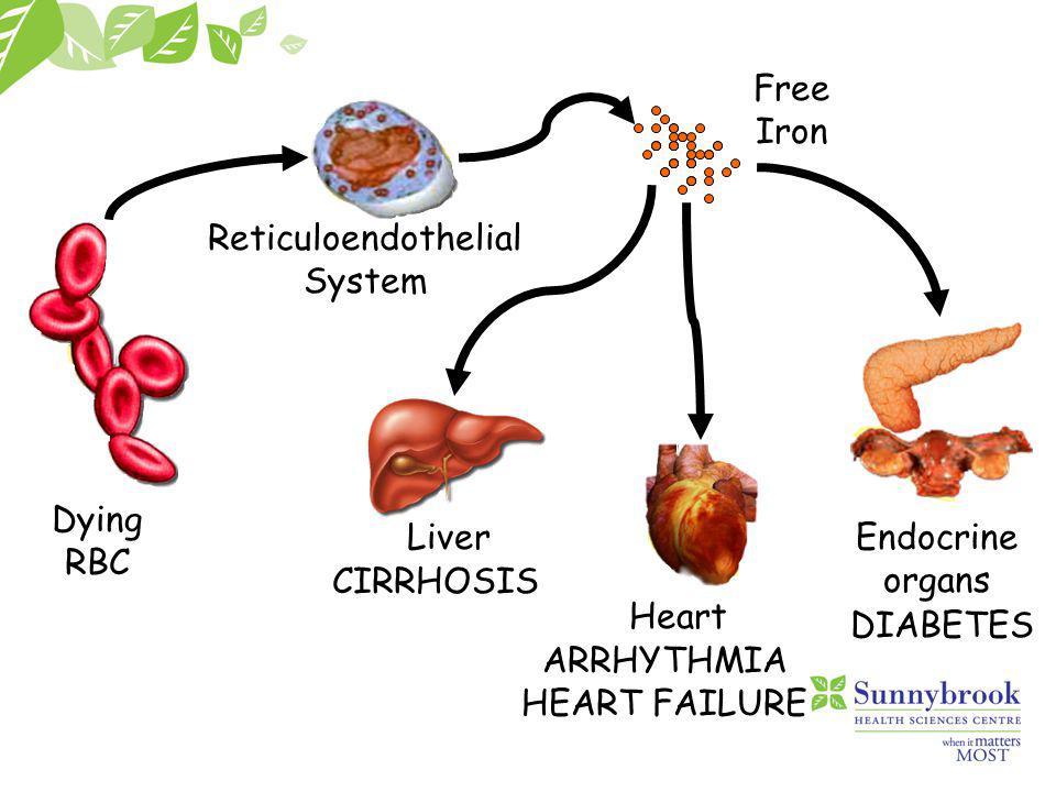 Lessons from thalassaemia Hepatic fibrosis Cirrhosis Arrhythmia Hypogonadism Diabetes Hypothyroidism Hypoparathyroidism Cardiomyopathy