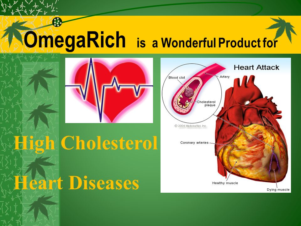 OmegaRich is a Wonderful Product for High Cholesterol Heart Diseases