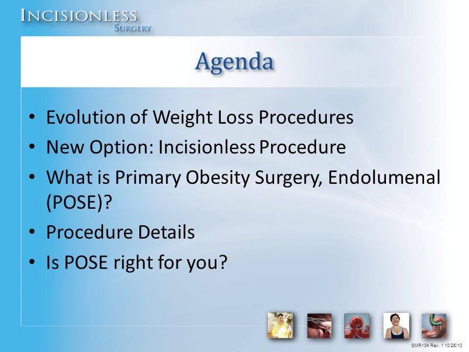 Evolution of Weight Loss Procedures New Option: Incisionless Procedure What is Primary Obesity Surgery, Endolumenal (POSE)? Procedure Details Is POSE