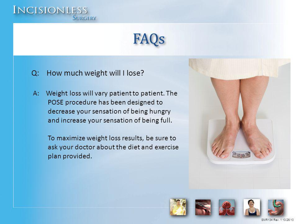 Q: How much weight will I lose? A: Weight loss will vary patient to patient. The POSE procedure has been designed to decrease your sensation of being