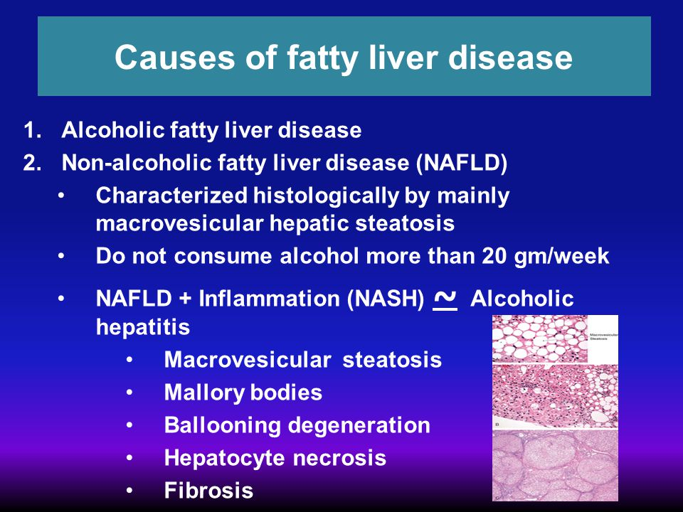 Causes of fatty liver disease 1.Alcoholic fatty liver disease 2.Non-alcoholic fatty liver disease (NAFLD) Characterized histologically by mainly macro