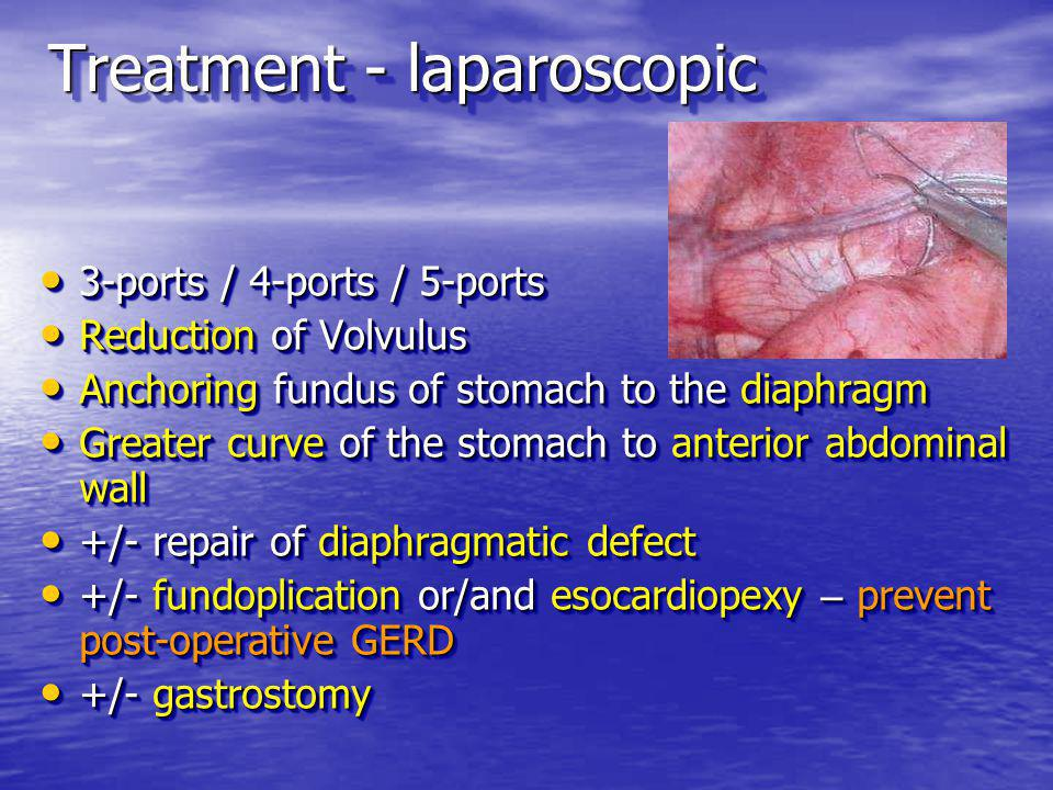 Treatment - laparoscopic 3-ports / 4-ports / 5-ports 3-ports / 4-ports / 5-ports Reduction of Volvulus Reduction of Volvulus Anchoring fundus of stomach to the diaphragm Anchoring fundus of stomach to the diaphragm Greater curve of the stomach to anterior abdominal wall Greater curve of the stomach to anterior abdominal wall +/- repair of diaphragmatic defect +/- repair of diaphragmatic defect +/- fundoplication or/and esocardiopexy – prevent post-operative GERD +/- fundoplication or/and esocardiopexy – prevent post-operative GERD +/- gastrostomy +/- gastrostomy 3-ports / 4-ports / 5-ports 3-ports / 4-ports / 5-ports Reduction of Volvulus Reduction of Volvulus Anchoring fundus of stomach to the diaphragm Anchoring fundus of stomach to the diaphragm Greater curve of the stomach to anterior abdominal wall Greater curve of the stomach to anterior abdominal wall +/- repair of diaphragmatic defect +/- repair of diaphragmatic defect +/- fundoplication or/and esocardiopexy – prevent post-operative GERD +/- fundoplication or/and esocardiopexy – prevent post-operative GERD +/- gastrostomy +/- gastrostomy