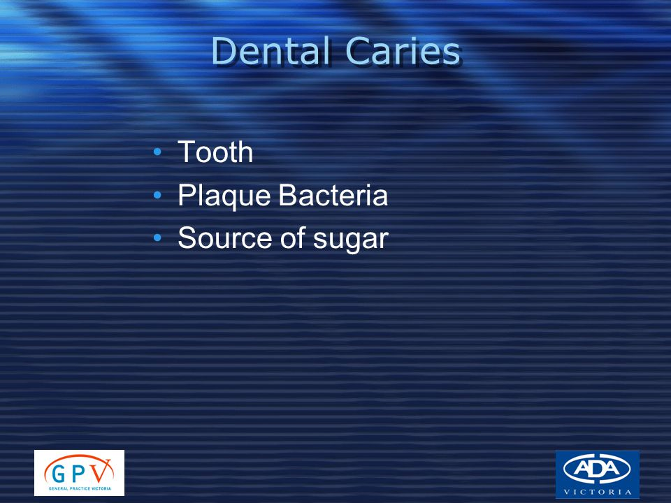 Dental Caries Tooth Plaque Bacteria Source of sugar