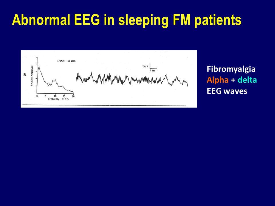 Abnormal EEG in sleeping FM patients Fibromyalgia Alpha + delta EEG waves Sleep disruption in healthy subjects caused pain and fatigue