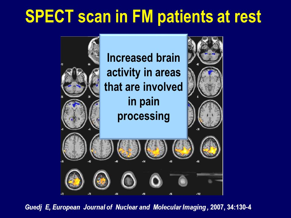 SPECT scan in FM patients at rest Increased brain activity in areas that are involved in pain processing Guedj E, European Journal of Nuclear and Mole