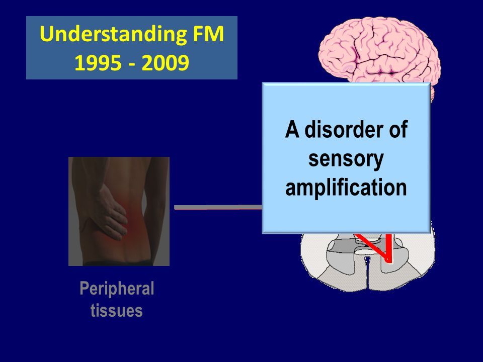 Understanding FM 1995 - 2009 Peripheral tissues A disorder of sensory amplification