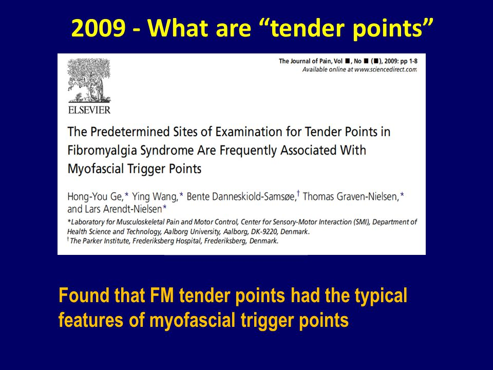 2009 - What are tender points Found that FM tender points had the typical features of myofascial trigger points